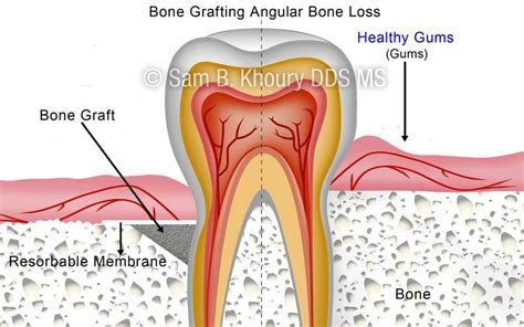 angular bone loss afterpreview dental implants pa gum