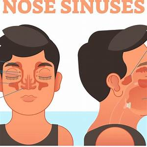 How Do Sinuses Drain Into Nose