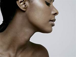Thyroid Disorders  Conditions  Symptoms  And Treatment