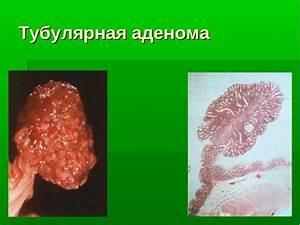 Готовые травяные сборы от простатита