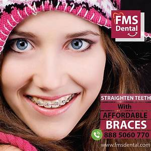 Dental Braces Treatment Cost In India