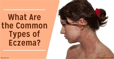 What Are The Common Types Of Eczema?