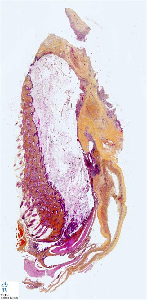 ovarian mature cystic teratoma humpathcom human pathology