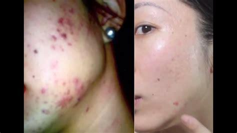 rid  acne scars banishcom youtube