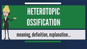 What Is Heterotopic Ossification  What Does Heterotopic