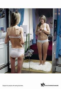 anorexia nervosa  Body Weight Anorexia Nervosa