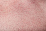 Dengue rashes: Appearance, Symptoms and Meaning | General ...