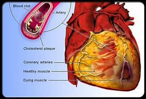 Cardiovascular Disease, Types,Diagnostic Tests, Surgical ...