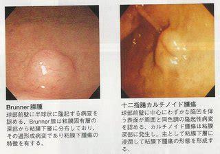コロナ リンパ 腺腫 れ