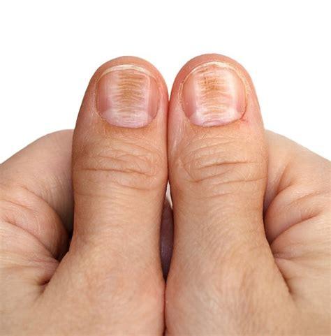 nail disease beriberi stock photo  aiscream