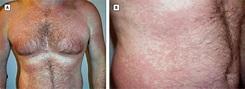 Telaprevir-Associated Morbilliform Eruption   Dermatology ...