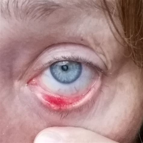 cure red rims  blepharitis thread discussing