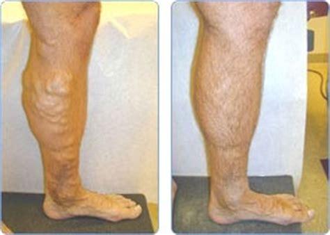 destin vein center florida varicose spider cosmetic leg