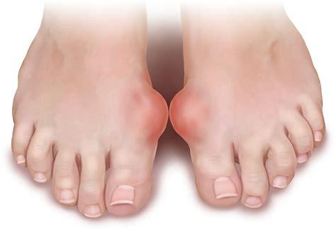 gout arthritis  phase development  gout arthritis
