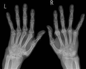 Mikronährstoffe Berechnen : rheumatoide arthritis ra imd institut f r medizinische diagnostik labor ~ Themetempest.com Abrechnung