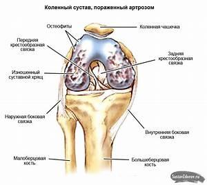 Гонартроз артроз коленного сустава препараты для лечение