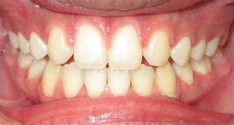 importance  incisors teeth healthrownet