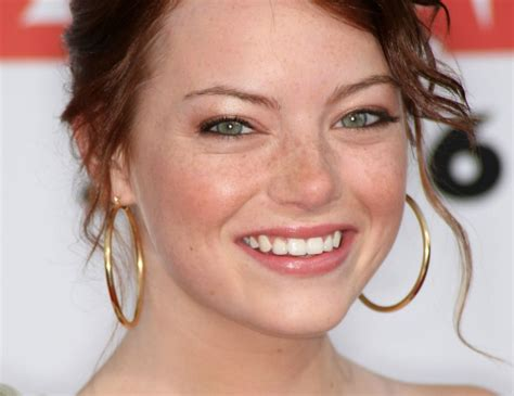 It Looks Like Emma Stone Drew On Fake Freckles For Sag