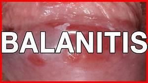 Balanitis: Symp... Balanitis