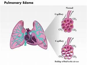 Pulmonary Edema  U2013 Oakland Lung And Sleep Specialists
