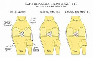 Can You Play Sports After A Torn Acl