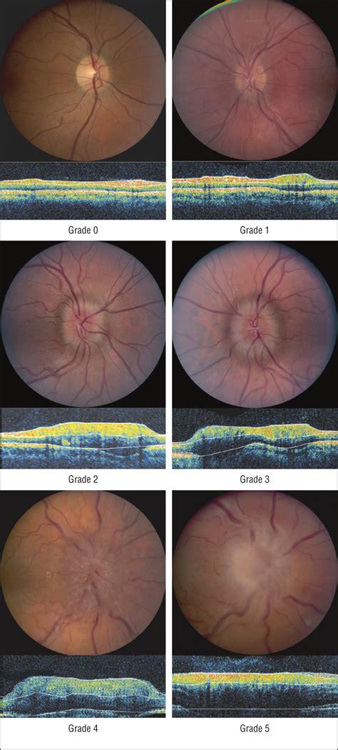 diagnosis  grading  papilledema  patients  raised intracranial pressure  optical
