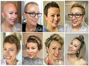 From Bald To Beautiful Tresses