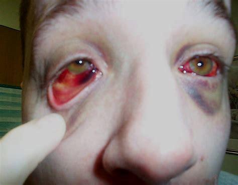 Beyond Anti Vax The Pertussis Problem A Dragoncon Tale