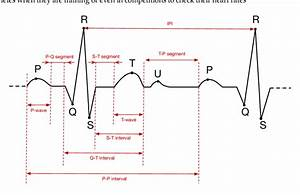 A Typical Electrocardiogram  Ecg  Signal And Its Main