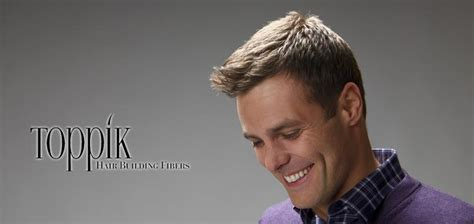 Fue And Fut Hair Transplant In Malaysia ? Use Toppik