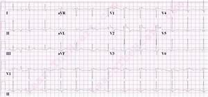 Best 25+ Brugada syndrome ideas on Pinterest | Cardiac ...