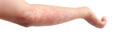 guertelrose hautausschlag antivirenmittel