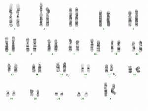 Acute Promyelocytic Leukemia  Karyotype