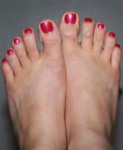 We Care for Your Feet: Hammer Toes