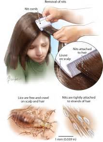 Images Of Lice Lice Dermatology Jama Jama Network