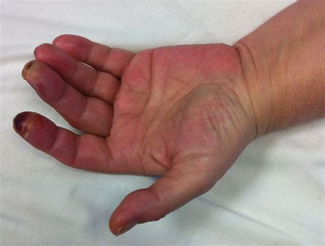 Symptoms And Signs Of Carpal Tunnel Syndrome Carpal