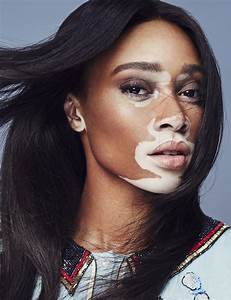 Winnie Harlow On The Cover Of Marie Claire Mexico Harry