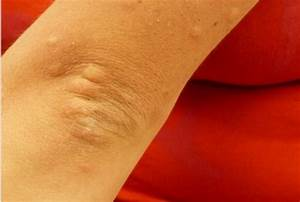 Bumps On Elbows Causes And Treatments