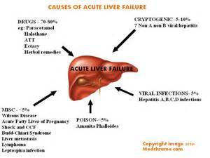 Acute Liver failure: Classification, causes, features and management ...  Hepatitis Cirrhosis