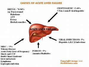 Acute Liver Failure  Classification  Causes  Features And