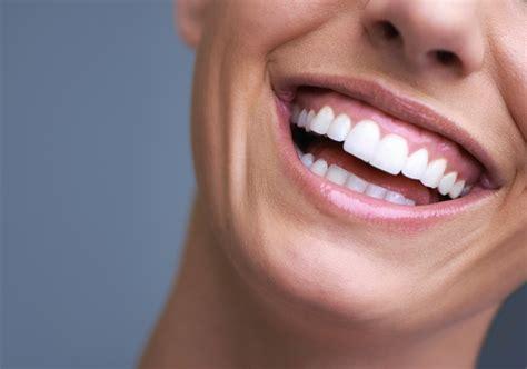 Smile Makeover - Premium Dental Center