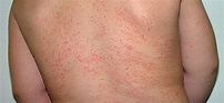 Prickly Heat / Prickles - Causes & Symptoms