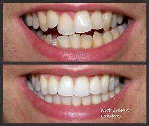 STRAIGHT TEETH...IN LESS TIME! CFast Braces is a ...