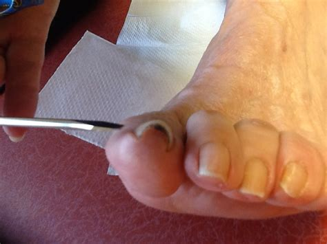 Curve Fix by How To Fix A Curved Toenail How You Can Do It At Home