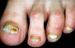 По-польски грибок ногтях