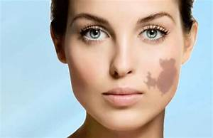 Birthmark Removal – Easy Ways to get rid of Birthmarks at home - Pigmentation remedy, Face skin  Skin Cancer Birthmarks - pigmented