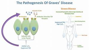 Graves Disease Mechanism | www.pixshark.com - Images ...