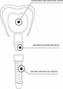 33 Dental Implant Parts Diagram