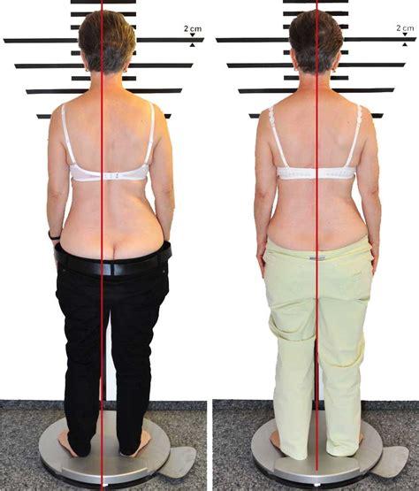 EIM Haltungskorrektur mit Methode Vor und Nachher