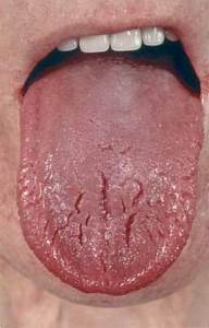 Glossitis In The Glucagonoma Syndrome